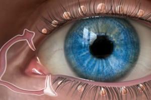 punctal-plug-dry-eyes